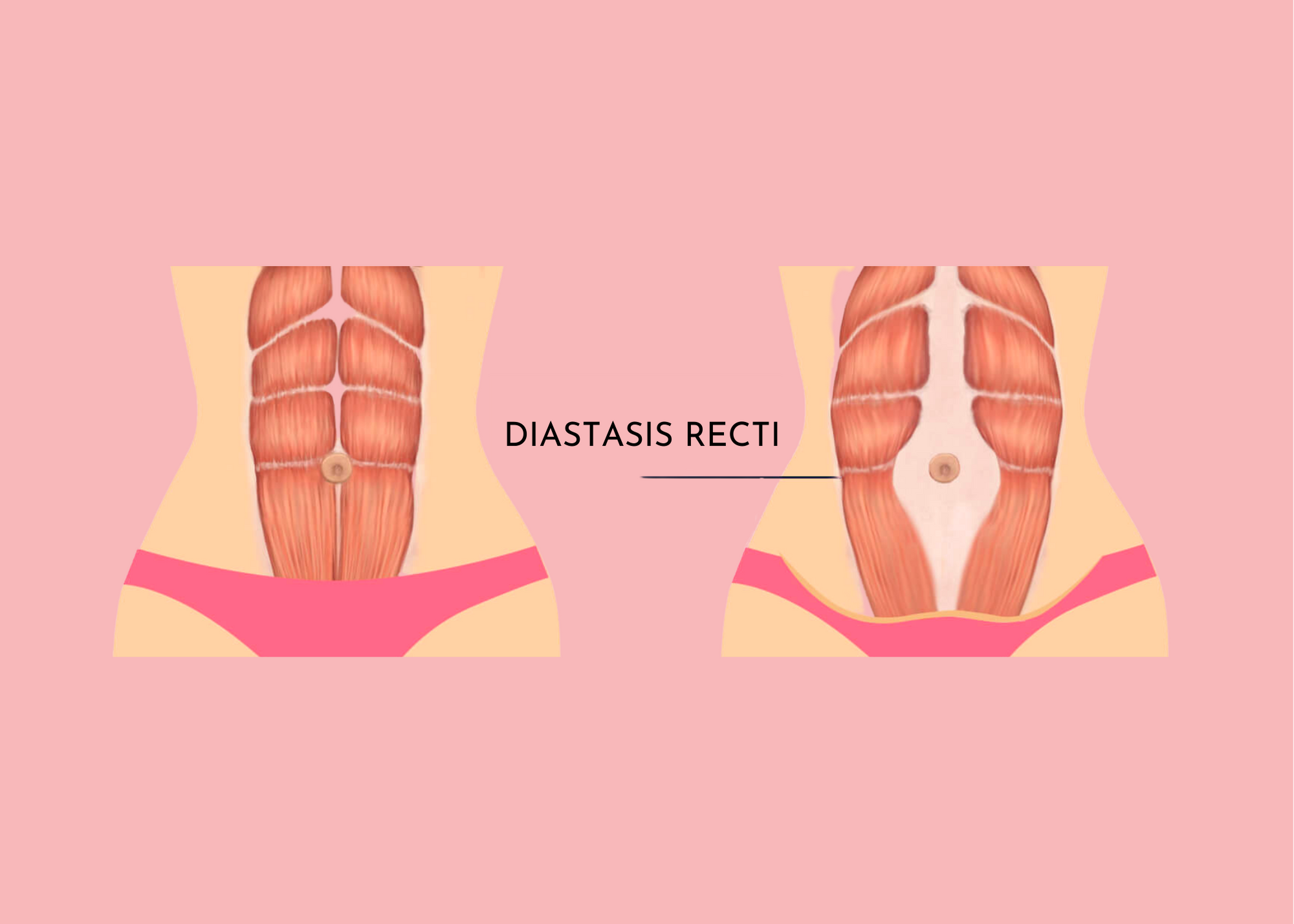 What Is Diastasis Recti & How Is It Treated?